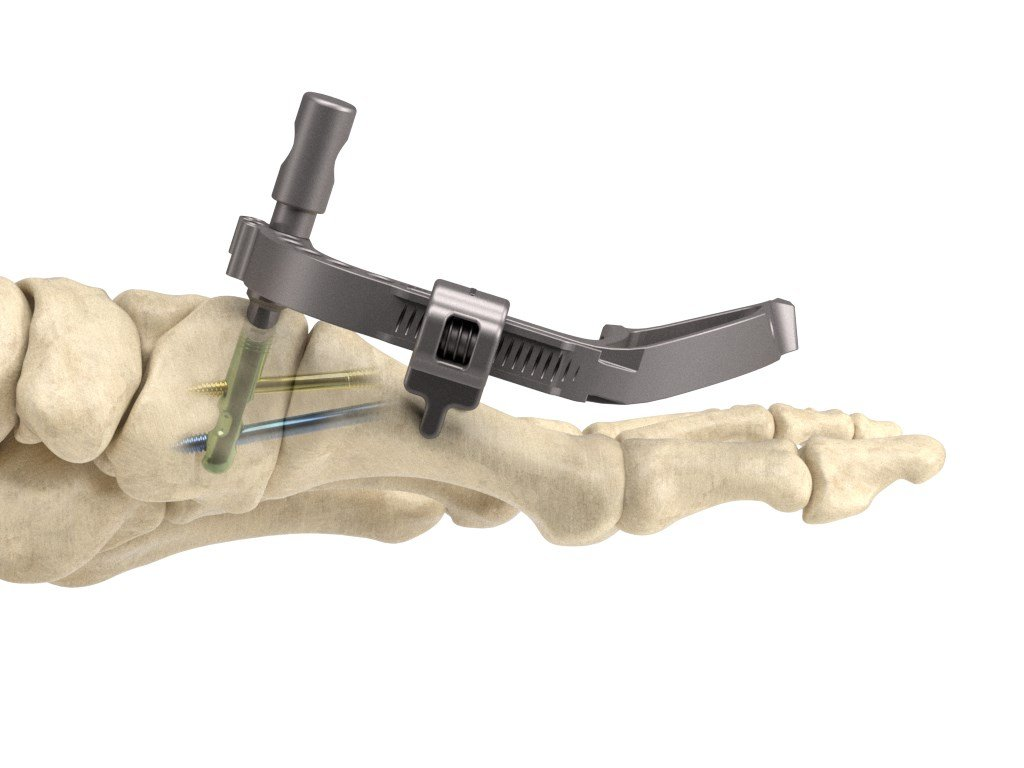 The InCore Lapidus System, an orthopedic device for the foot, contributed to sales momentum in 2018.
